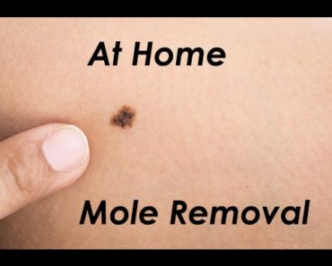 Home Mole Removal