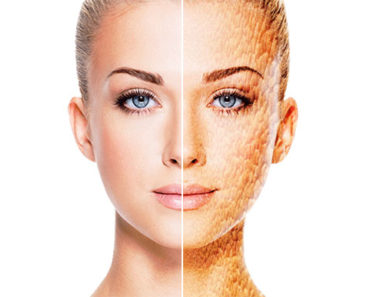 The Ravaging Effects of Aging on the Skin