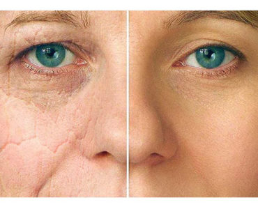 Why Does Our Skin Age